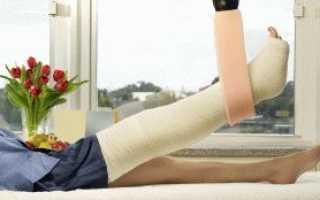 Что делать когда сняли гипс с ноги. Основные задачи при реабилитации