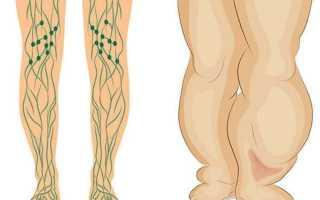 Упражнения для молодости женского тела лимфа. Застой лимфы: упражнения для нормализации оттока