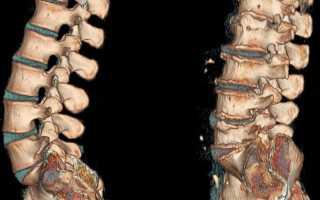 Эффективная гимнастика для позвоночника и суставов при остеохондрозе. Видео упражнения для суставов и позвоночника
