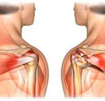 Повреждение надостной мышцы плеча, лечение. Функции мышц плеча