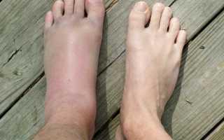 Что делать после снятия гипса. Как снять отек ноги после перелома – эффективные методы и рекомендации