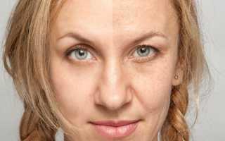 Как уменьшить объем лица в домашних условиях. Как убрать бульдожьи щечки на лице и почему они возникают