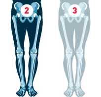 Исправление о образной кривизны ног упражнения. Можно ли бороться с ложной кривизной ног