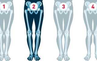 О образная деформация ног. Особенности коррекции Х-образной формы ног