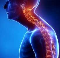 Какие мышцы надо качать чтобы не сутулиться. Как не сутулиться? Упражнения для осанки