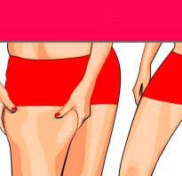 Что нужно делать чтобы ноги не отекали? Что нужно делать, чтобы похудели ноги? Комплекс проверенных рецептов.