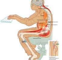 Физические упражнения при малоподвижном образе жизни. Разминка для спины