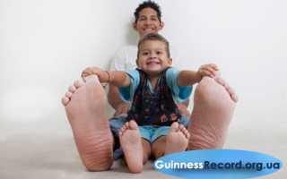 Самая большая нога в мире. Самая большая стопа человека в мире