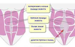 Диастаз после родов признаки. Симптомами пупочной грыжи могут быть