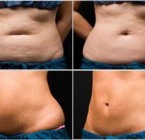 Массаж для похудения живота и боков. Массаж от жира на животе и боках: можно ли убрать отложения и как