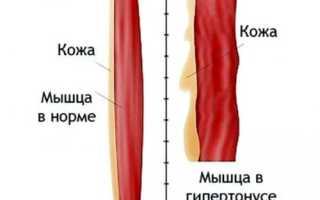 Тонус икроножных мышц у взрослых лечение. Основные симптомы гипертонуса мышц и подходы к его терапии