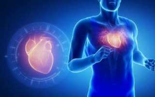 Проблемы с сердцем у спортсменов. Признаки и лечение синдрома спортивного сердца