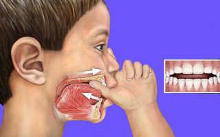 Упражнения для укрепления круговой мышцы рта. Как проводить миогимнастку для исправления прикуса, для губ и языка, круговой мышцы рта? Комплекс упражнений для выработки правильного произношения звука «P»