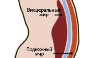 Жировые отложения. Как откладывается жир у мужчин