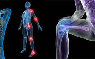 Связки и сухожилия. Как укрепить суставы и связки: средства и упражнения